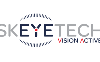 skeyetech vision active